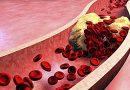 A importância da levedura do arroz vermelho no combate ao colesterol.
